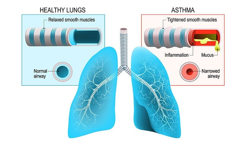 Health & Vitality Center Los Angeles Functional Medicine Holistic Asthma Treatment