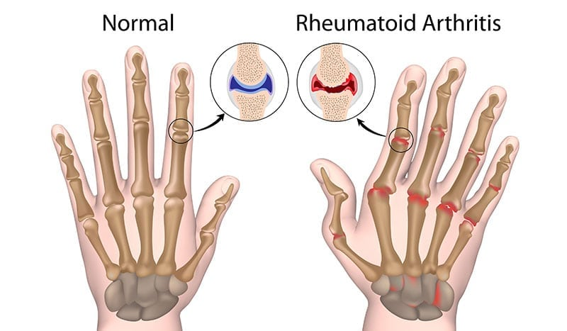 comparison of healthy hand joints and ones with rheumatoid arthritis