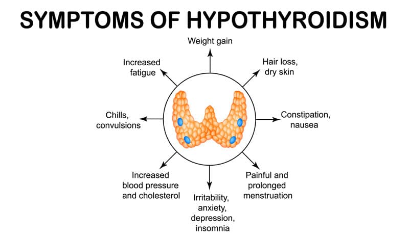 natural hypothyroid treatment doctors los angeles
