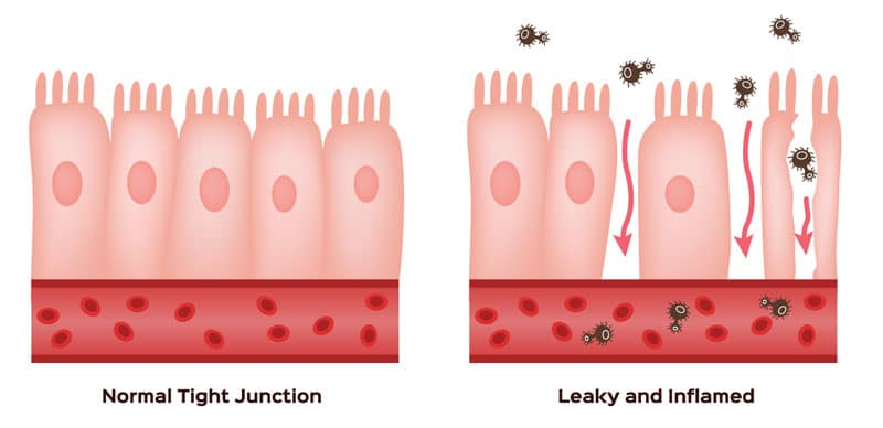 graphic of leaky gut
