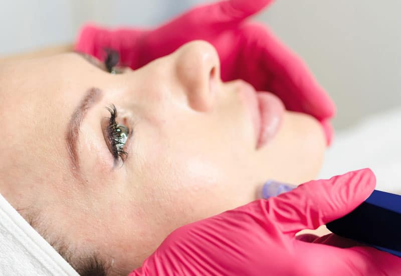 woman receiving Microneedling with PRP