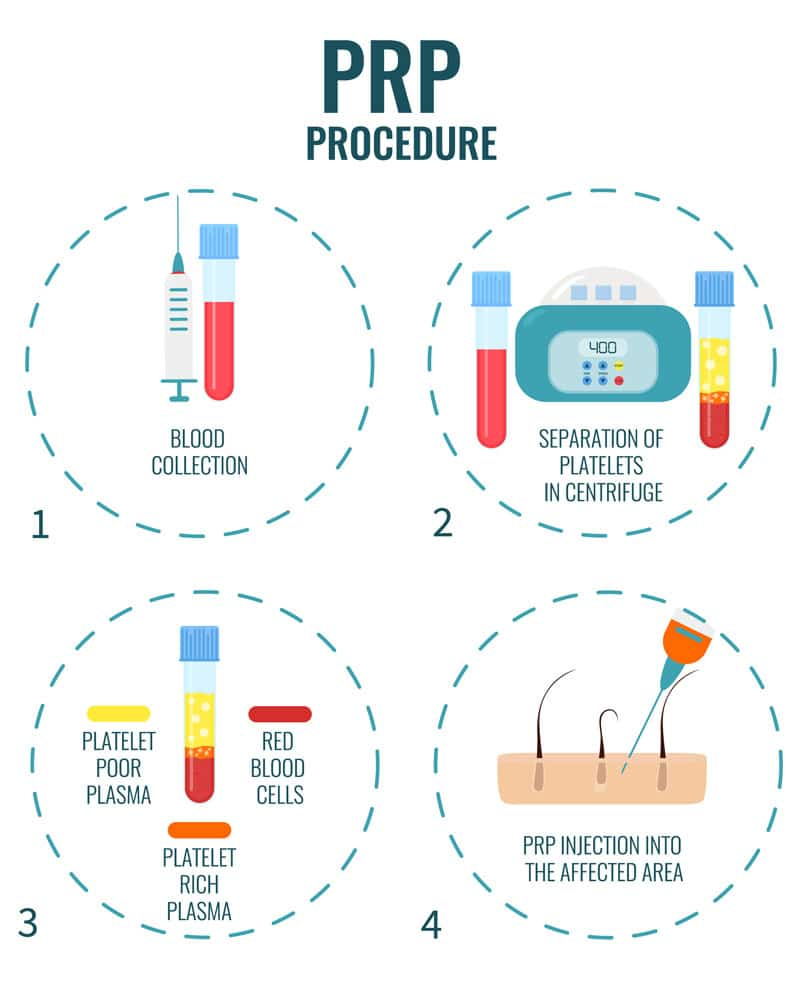PRP procedure graphic