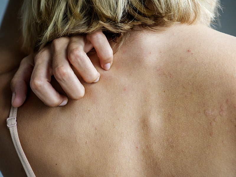 woman scratching her back, suffering from eczema