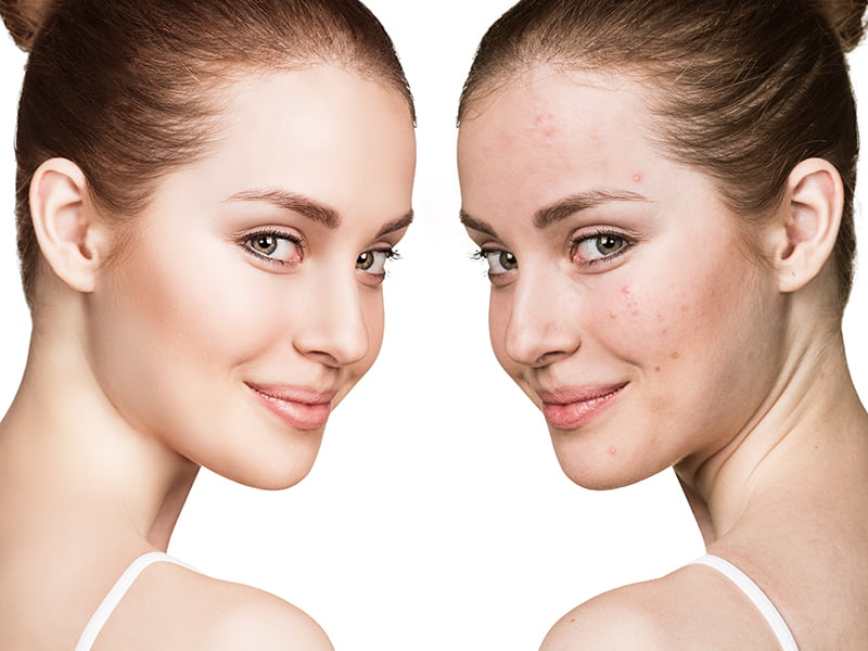 two pictures of same woman, one with rash on face and one without